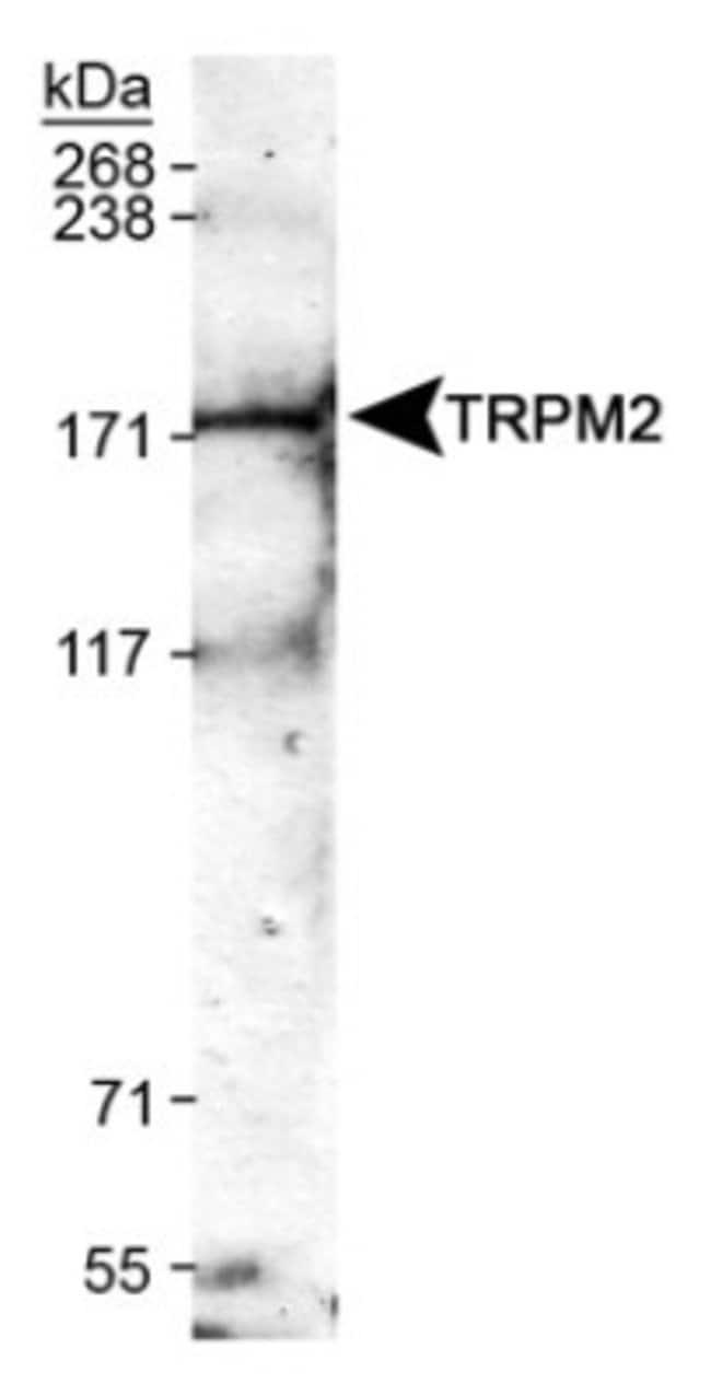 anti-TRPM2, Polyclonal, Novus Biologicals:Antibodies:Primary Antibodies