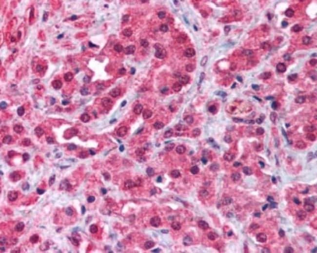 anti-TRPM8, Polyclonal, Novus Biologicals:Antibodies:Primary Antibodies