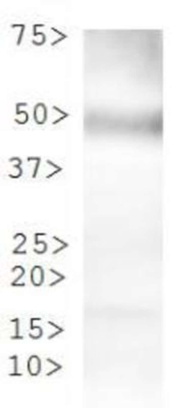 anti-Tryptophan hydroxylase 2, Polyclonal, Novus Biologicals:Antibodies:Primary