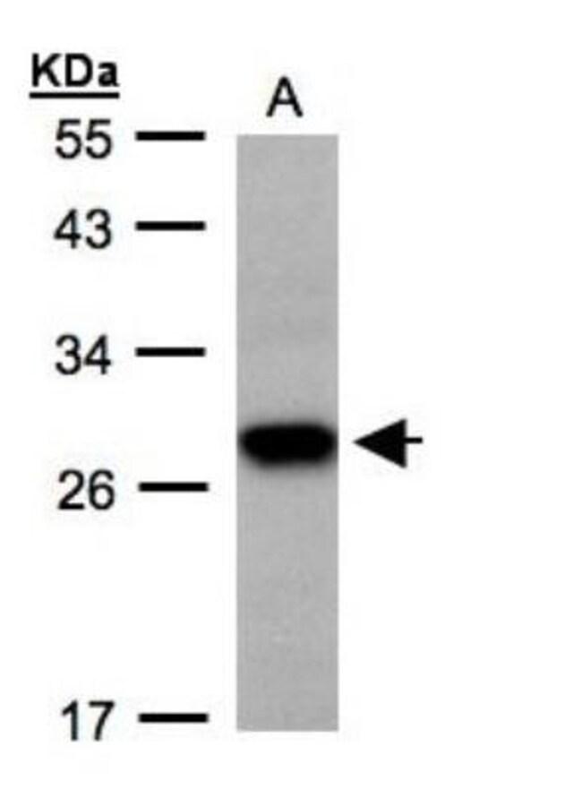 anti-TSPAN1, Polyclonal, Novus Biologicals 0.1mg; Unlabeled:Life Sciences