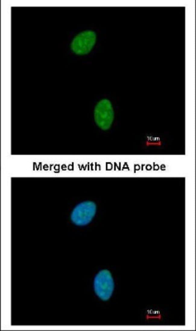 anti-TSPYL1, Polyclonal, Novus Biologicals 0.1mg; Unlabeled:Life Sciences