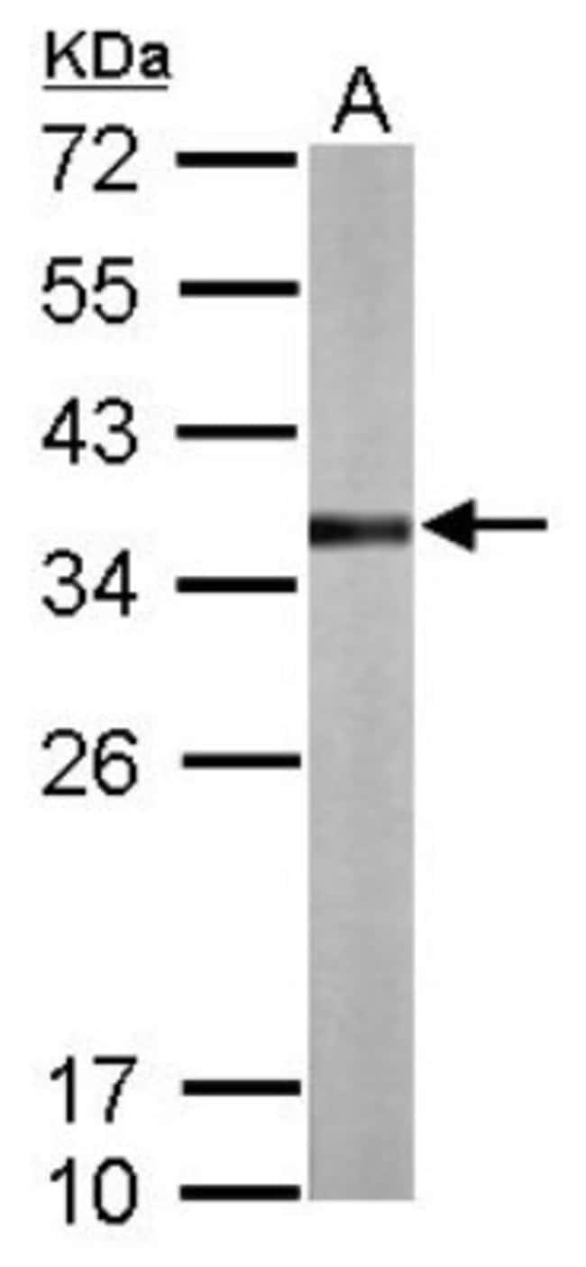 anti-TST, Polyclonal, Novus Biologicals 0.1mL; Unlabeled:Life Sciences