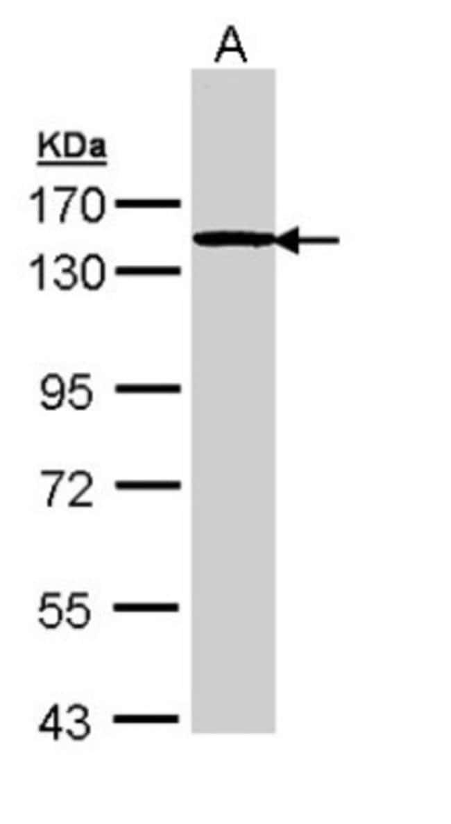 anti-TTF2, Polyclonal, Novus Biologicals 0.1mL; Unlabeled:Life Sciences