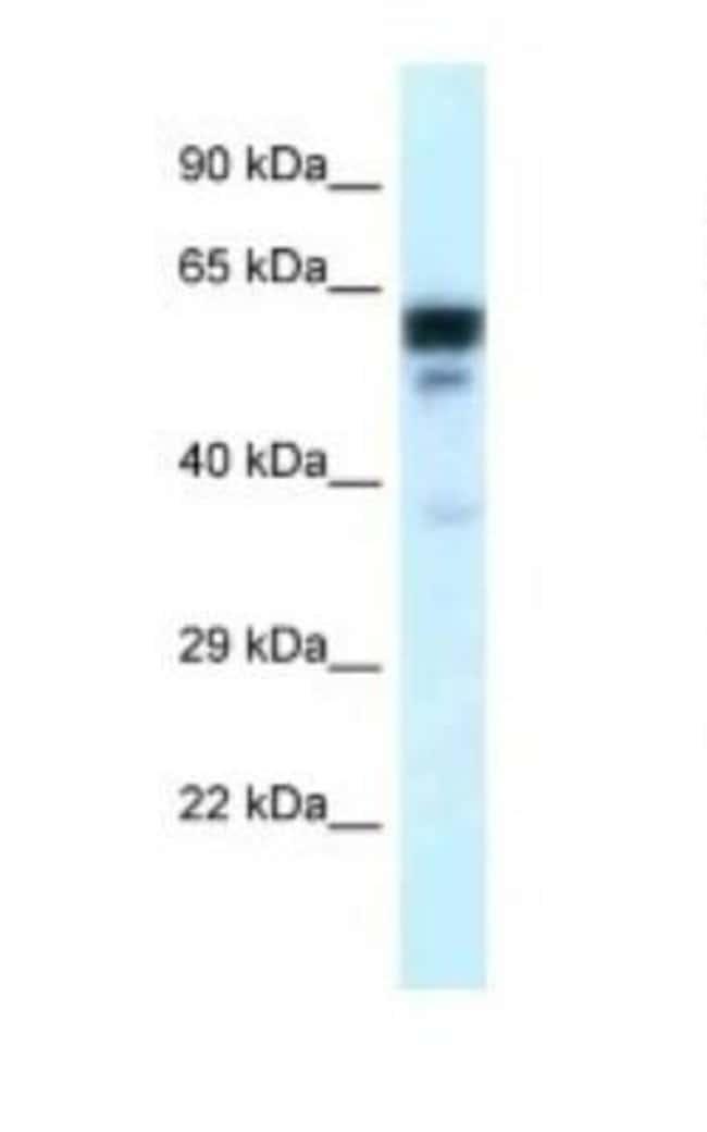 TUBA6 Rabbit anti-Human, Mouse, Rat, Polyclonal, Novus Biologicals 100µL;