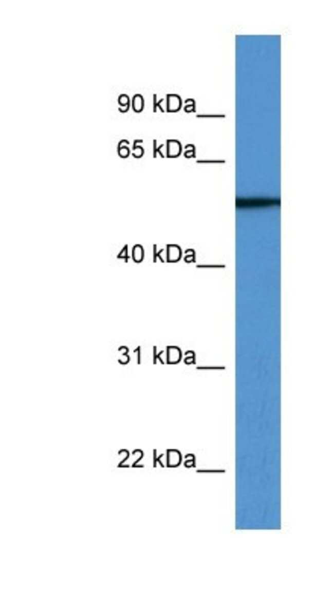 TUBB6 Rabbit anti-Human, Polyclonal, Novus Biologicals 100µL; Unlabeled:Life