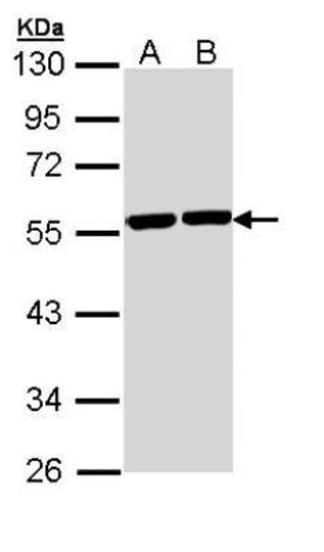 anti-Tubulin alpha-8, Polyclonal, Novus Biologicals 0.1mg; Unlabeled:Antibodies