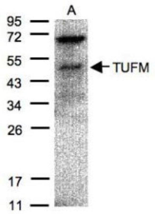 anti-TUFM, Polyclonal, Novus Biologicals 0.1mg; Unlabeled:Life Sciences