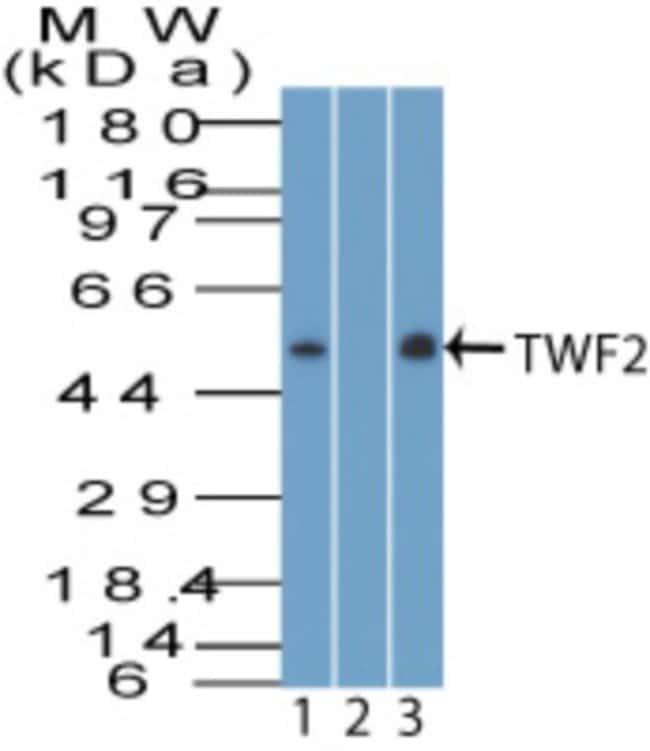 anti-TWF2, Polyclonal, Novus Biologicals:Antibodies:Primary Antibodies