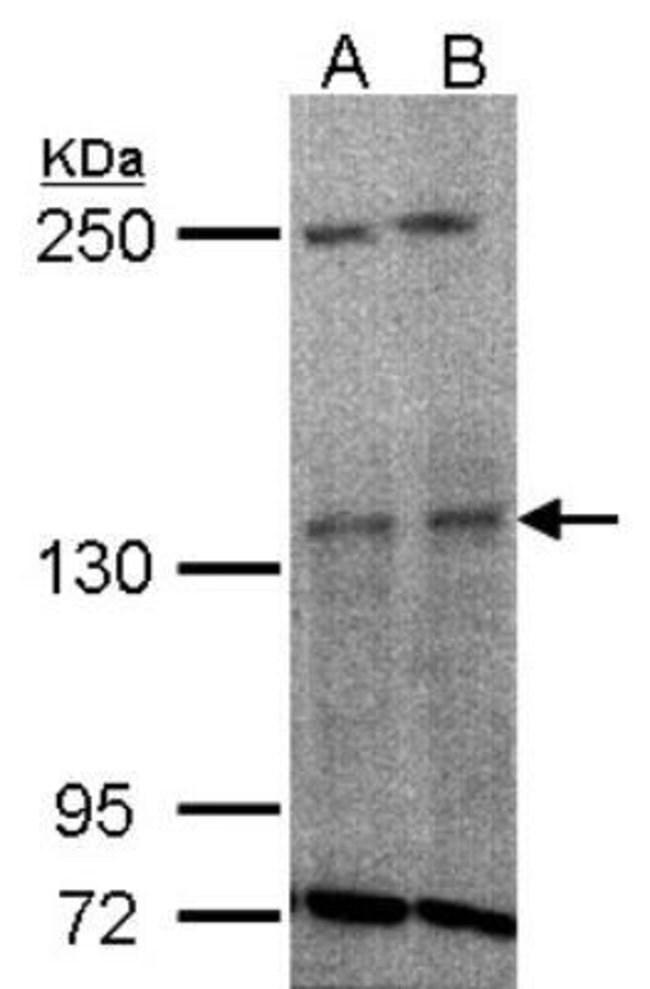 anti-Tyk2, Polyclonal, Novus Biologicals 0.1mg; Unlabeled:Life Sciences