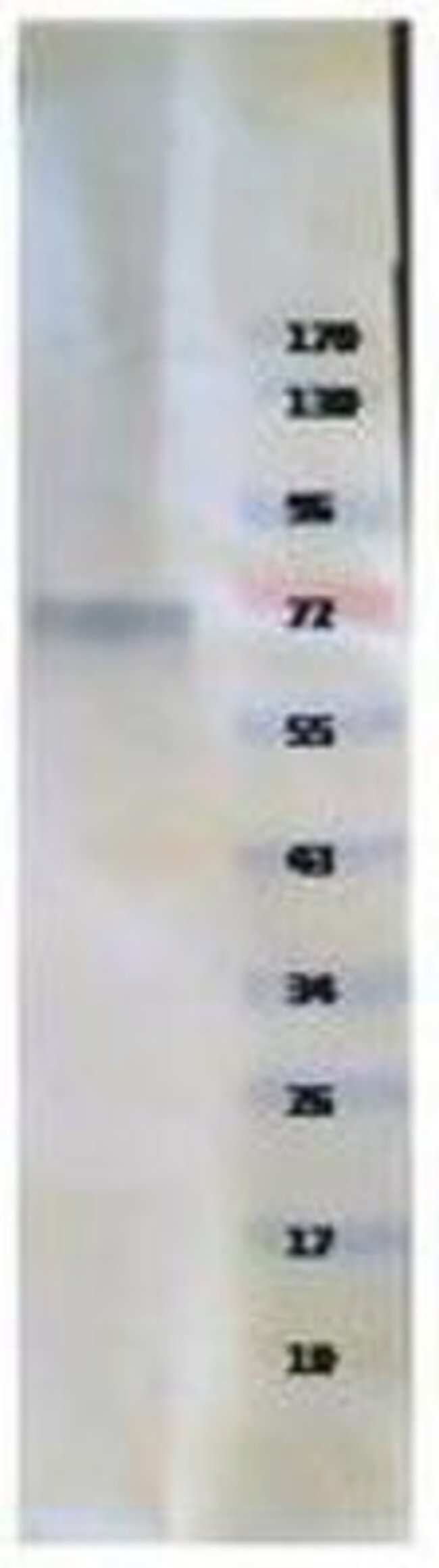 Novus Biologicals Human Tyrosine Hydroxylase Protein 0.01mg; Unlabeled:Life