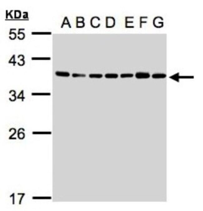 anti-U2AF35, Polyclonal, Novus Biologicals 0.1mL; Unlabeled:Life Sciences