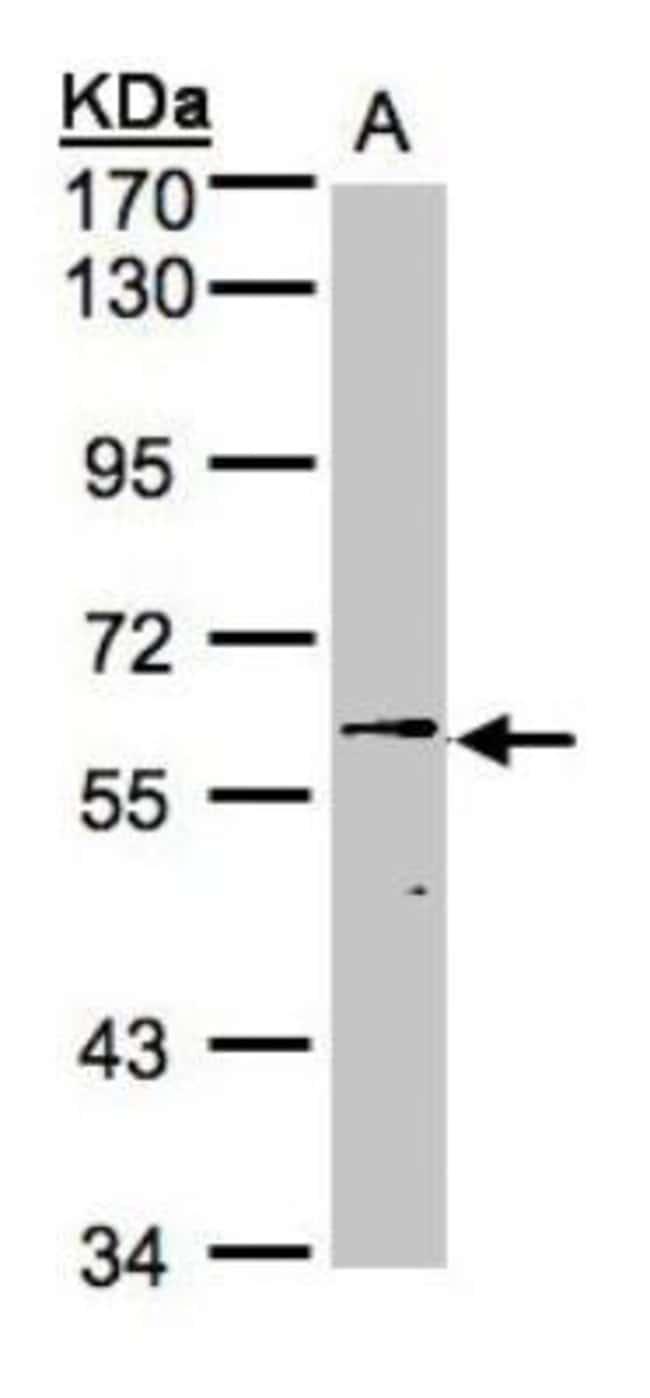 anti-UBASH3B/STS1/Tula-2, Polyclonal, Novus Biologicals 0.1mL; Unlabeled:Life