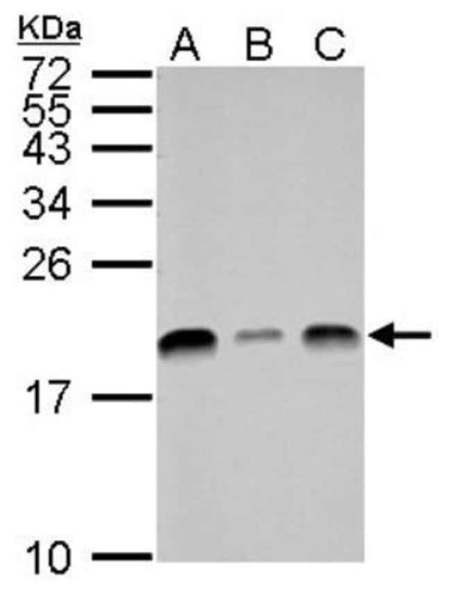 anti-UbcH7/UBE2L3, Polyclonal, Novus Biologicals 0.1mg; Unlabeled:Antibodies