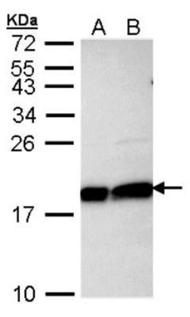 anti-UbcH7/UBE2L3, Polyclonal, Novus Biologicals 0.1mg; Unlabeled:Life