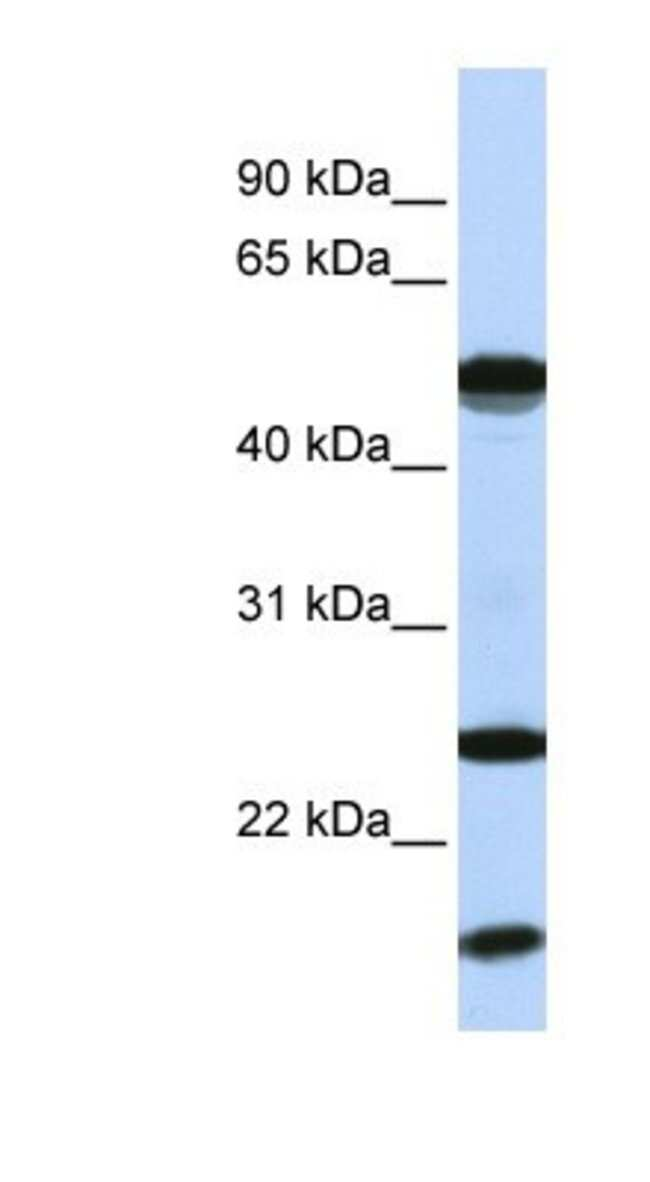 UbcH8/Ube2L6 Rabbit anti-Human, Polyclonal, Novus Biologicals 20µL;