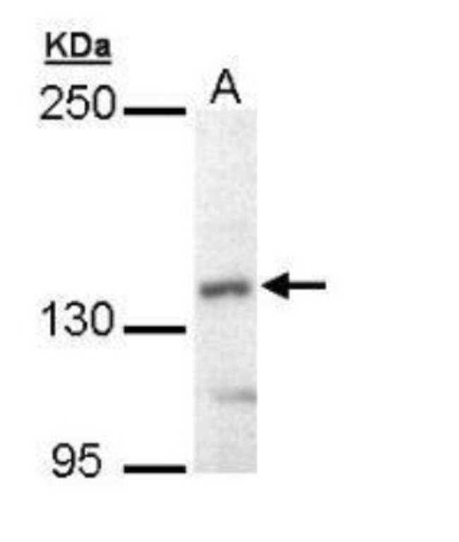 anti-UBE4B, Polyclonal, Novus Biologicals 0.1mg; Unlabeled:Life Sciences