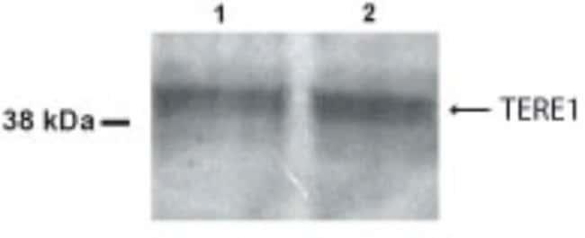 anti-UBIAD1, Polyclonal, Novus Biologicals:Antibodies:Primary Antibodies