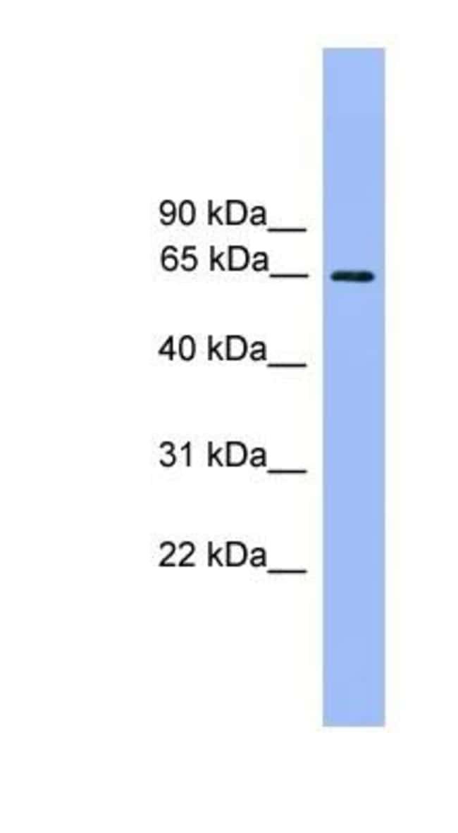 Ubiquilin 2 Rabbit anti-Human, Polyclonal, Novus Biologicals 100µL;