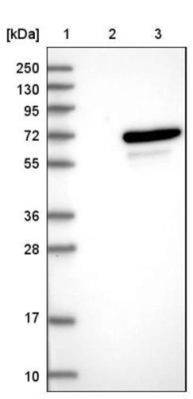 anti-UBOX5, Polyclonal, Novus Biologicals 0.1mL; Unlabeled:Life Sciences