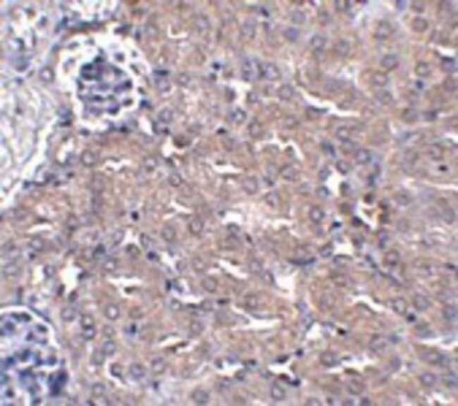 anti-UBQLN4/CIP75, Polyclonal, Novus Biologicals 0.1mg; Unlabeled:Life
