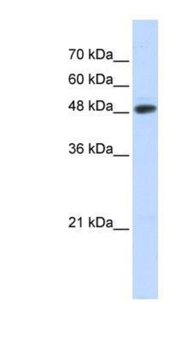 UBR7 Rabbit anti-Human, Polyclonal, Novus Biologicals 20µL; Unlabeled