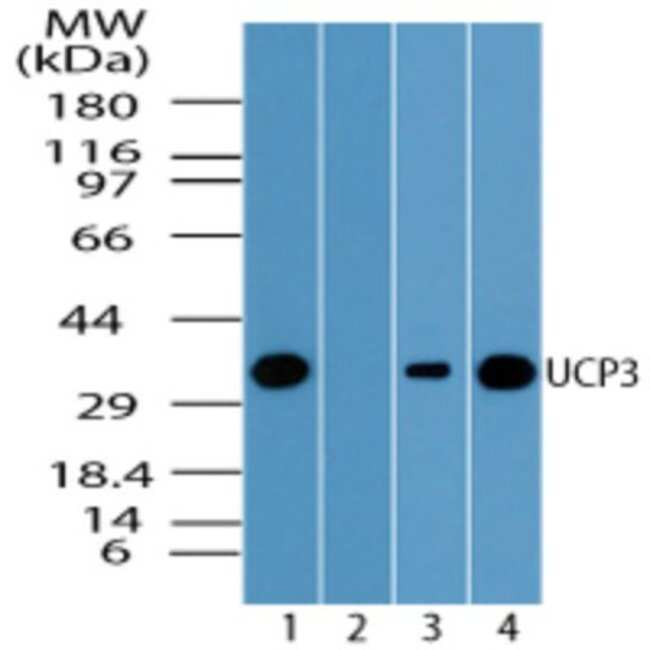 anti-UCP3, Polyclonal, Novus Biologicals:Antibodies:Primary Antibodies
