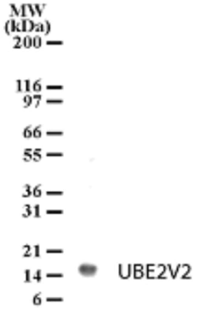 anti-UEV2, Polyclonal, Novus Biologicals:Antibodies:Primary Antibodies