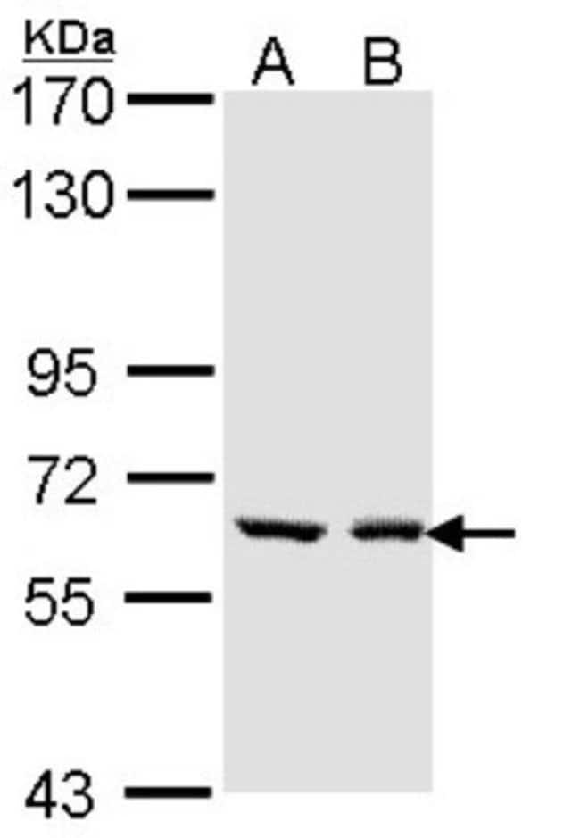 anti-UGT1A6, Polyclonal, Novus Biologicals 0.1mL; Unlabeled:Life Sciences