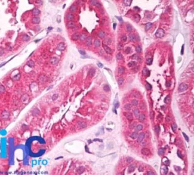anti-UNC5CL, Polyclonal, Novus Biologicals:Antibodies:Primary Antibodies