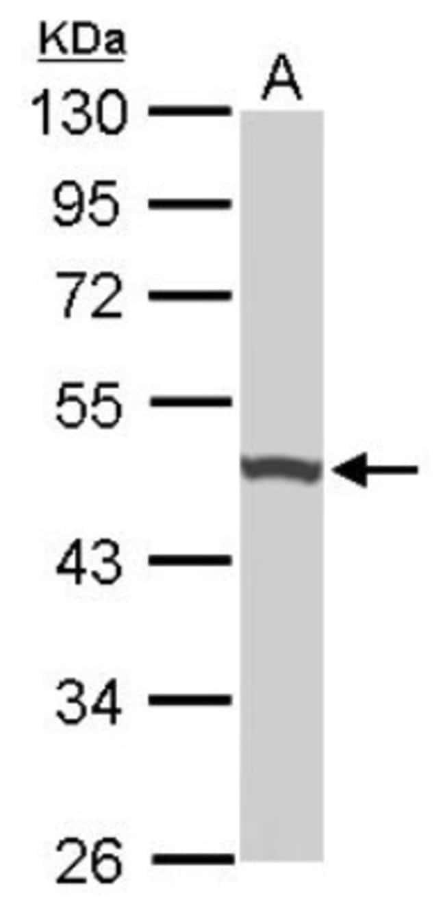 anti-UQCRC1, Polyclonal, Novus Biologicals 0.1mg; Unlabeled:Life Sciences