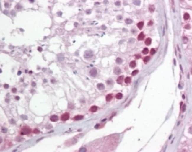 anti-UNG, Polyclonal, Novus Biologicals:Antibodies:Primary Antibodies
