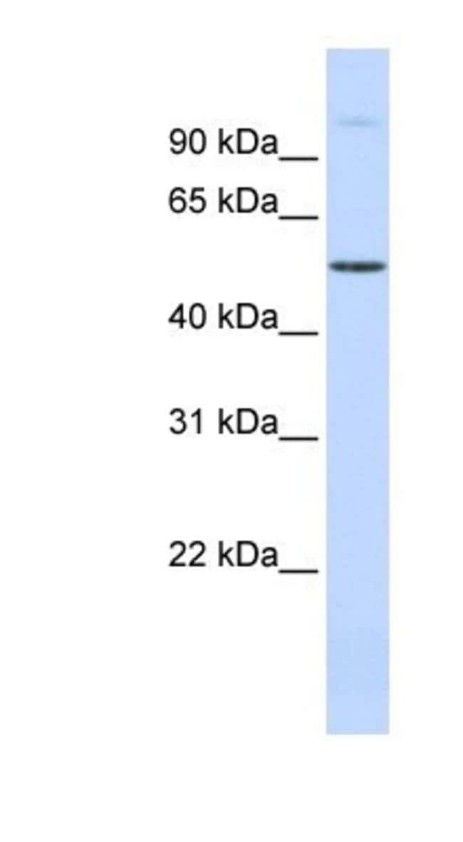 URI Rabbit anti-Human, Polyclonal, Novus Biologicals 100µL; Unlabeled:Life