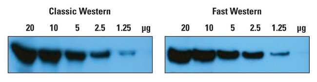 Thermo Scientific Pierce SuperSignal West Dura Fast Western Blot Kits:Electrophoresis,