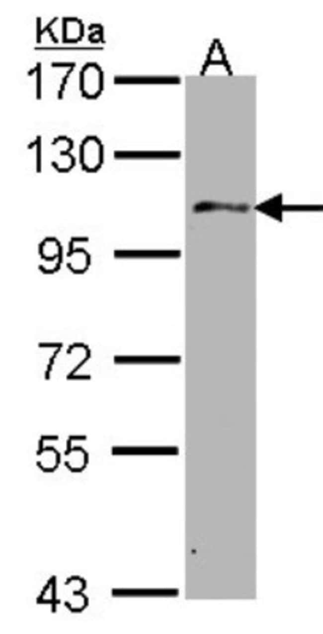 anti-USP10, Polyclonal, Novus Biologicals 0.1mL; Unlabeled:Antibodies