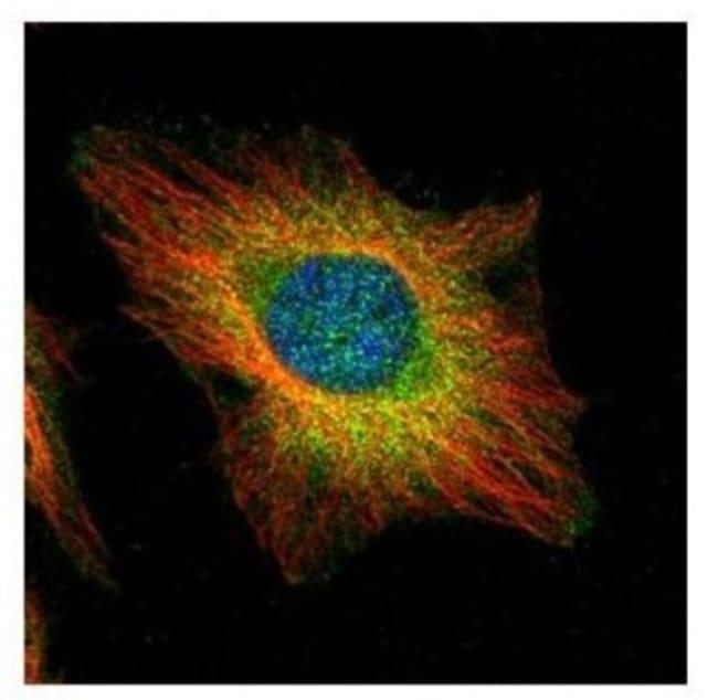 anti-USP11, Polyclonal, Novus Biologicals 0.1mg; Unlabeled:Life Sciences