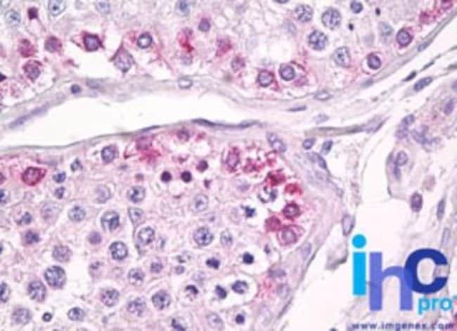 anti-USP13, Polyclonal, Novus Biologicals:Antibodies:Primary Antibodies
