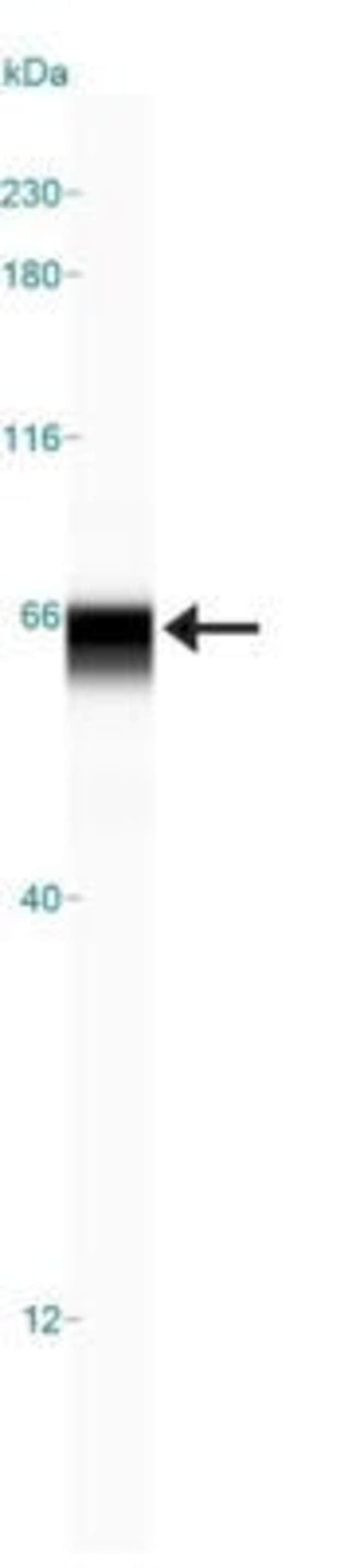 anti-USP22, Polyclonal, Novus Biologicals:Antibodies:Primary Antibodies