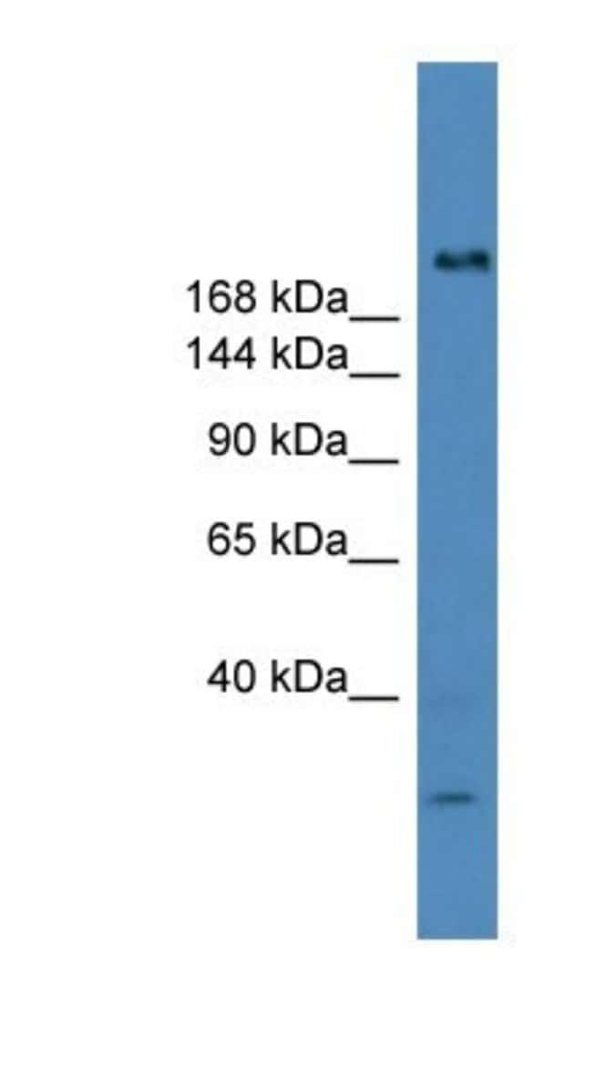 USP9Y Rabbit anti-Human, Polyclonal, Novus Biologicals 100µL; Unlabeled:Life