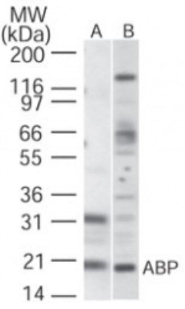 anti-VABP, Polyclonal, Novus Biologicals:Antibodies:Primary Antibodies
