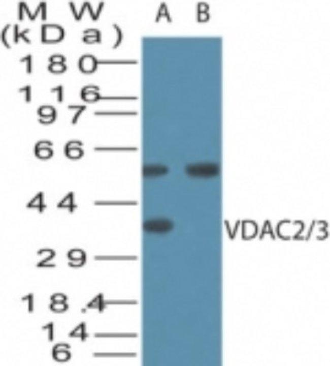 anti-VDAC2/3, Polyclonal, Novus Biologicals:Antibodies:Primary Antibodies