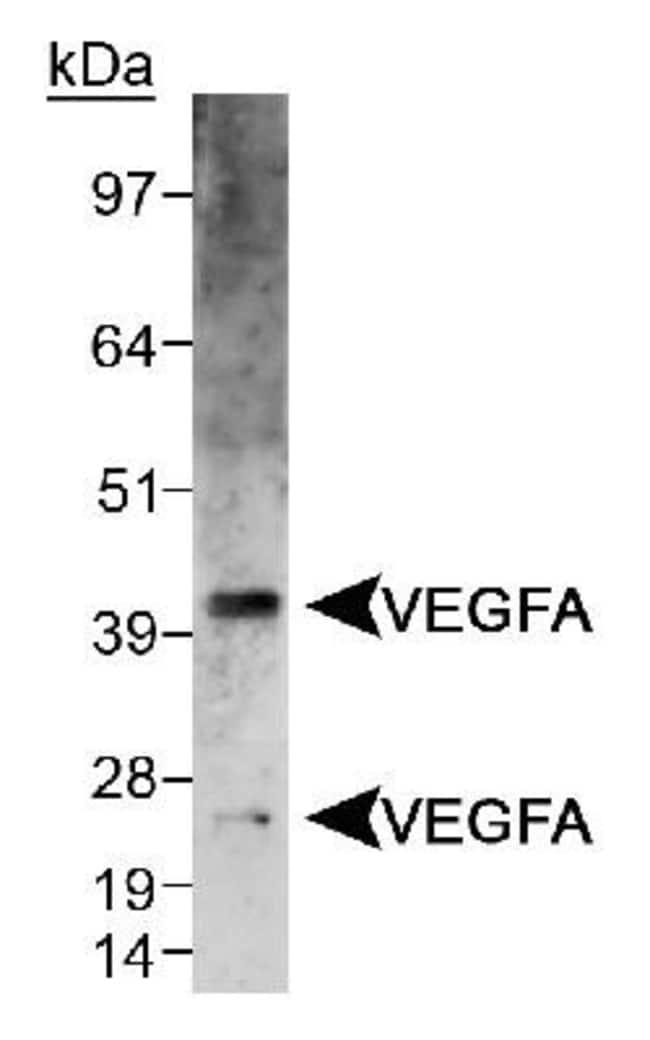 anti-VEGF, Polyclonal, Novus Biologicals:Antibodies:Primary Antibodies
