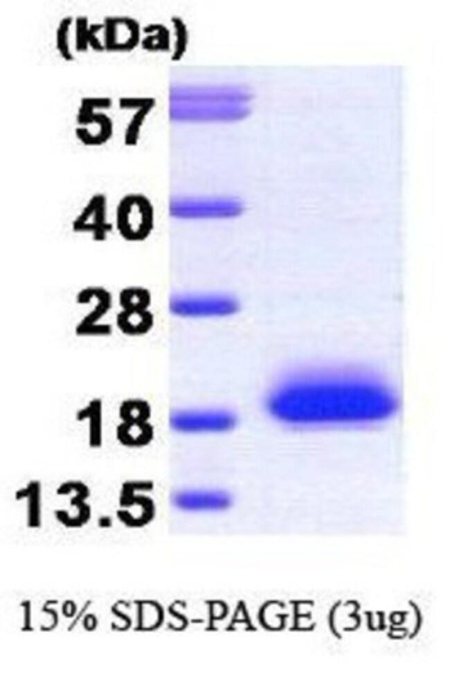 Novus Biologicals Human visinin-like 1 Recombinant Protein 0.1mg:Life Sciences