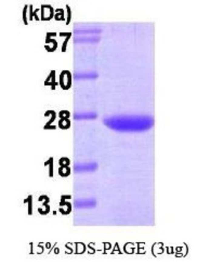 Novus Biologicals Human VPS28 Protein 0.1mg; Unlabeled:Life Sciences