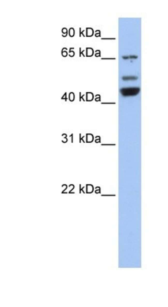 VPS4A Rabbit anti-Human, Polyclonal, Novus Biologicals 100µL; Unlabeled:Life