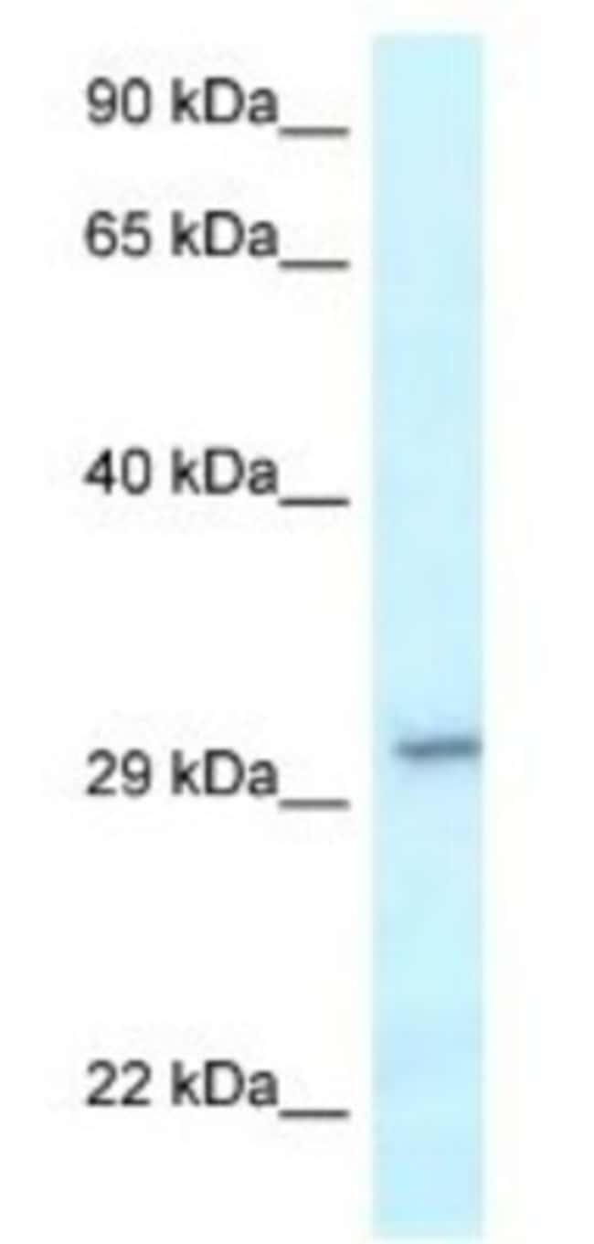 VTI1B Rabbit anti-Human, Polyclonal, Novus Biologicals 100µL; Unlabeled:Life