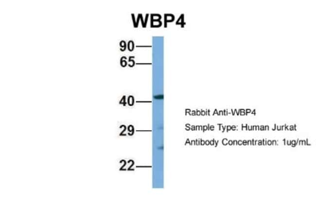 WBP4 Rabbit anti-Human, Polyclonal, Novus Biologicals 100µL; Unlabeled:Life