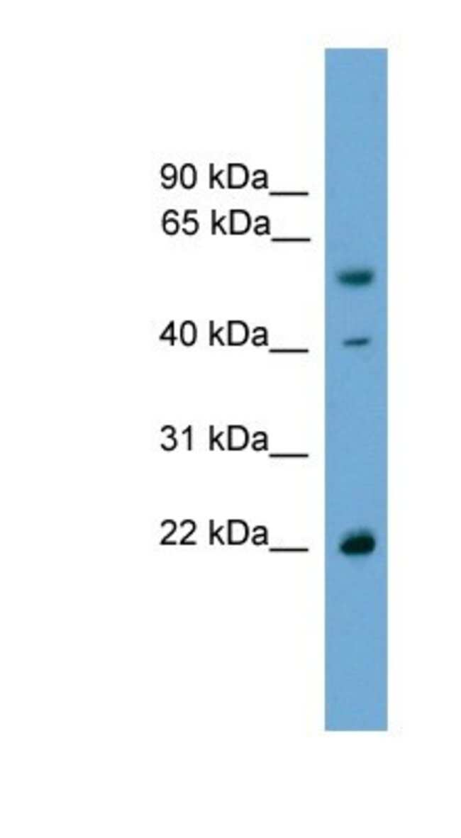 WBP4 Rabbit anti-Human, Polyclonal, Novus Biologicals 100µL; Unlabeled:Life