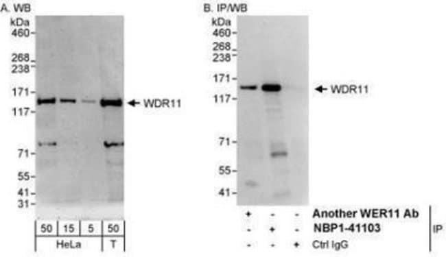anti-WDR11, Polyclonal, Novus Biologicals 0.1mL; Unlabeled:Life Sciences