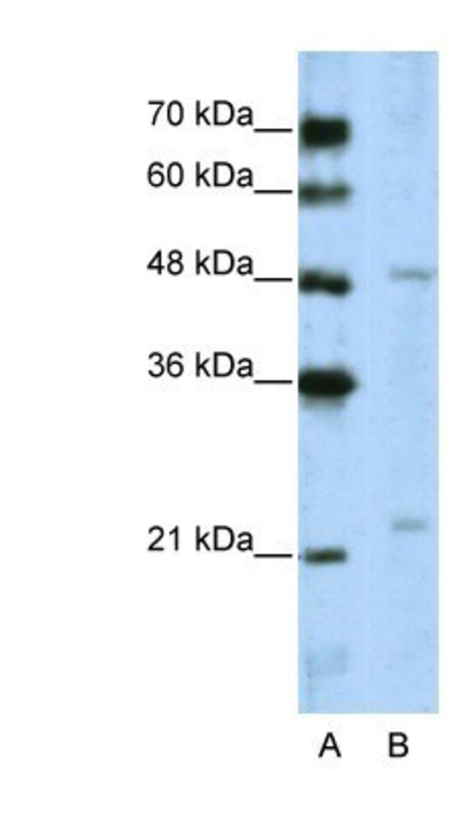WDR12 Rabbit anti-Human, Polyclonal, Novus Biologicals 100µL; Unlabeled:Life