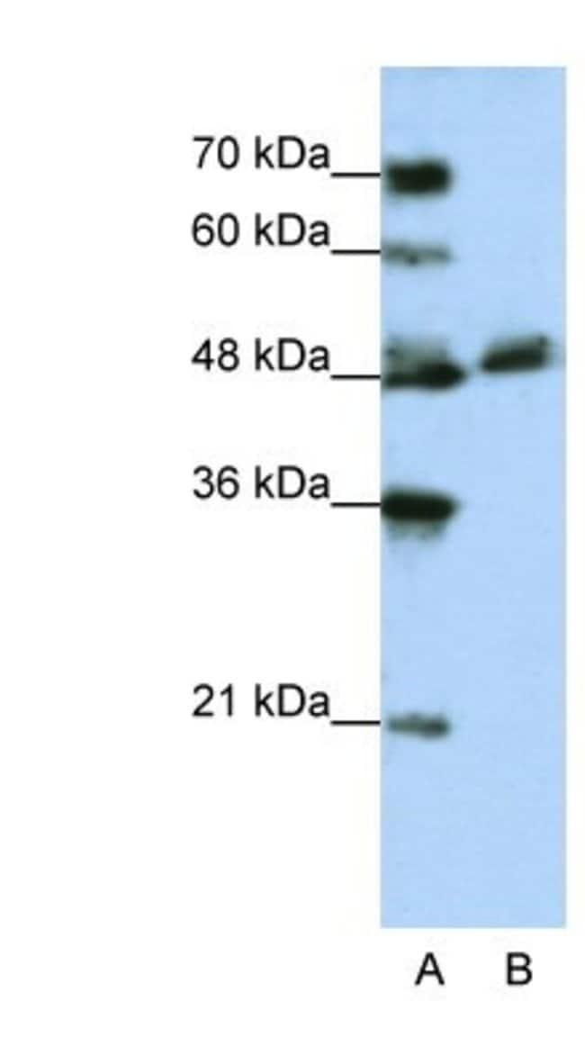 WDR13 Rabbit anti-Human, Polyclonal, Novus Biologicals 20µL; Unlabeled
